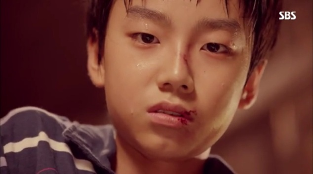 notice how the scars are the same as Kwang Woo's when he ran away last episode?